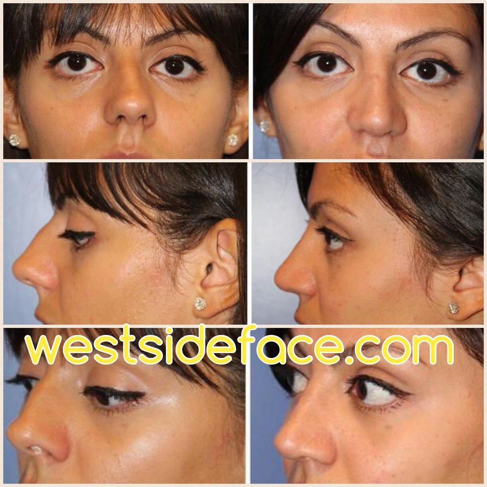 Complex revision rhinoplasty with correction of 'up turned' tip. Correction of hump and correction of crooked nose.