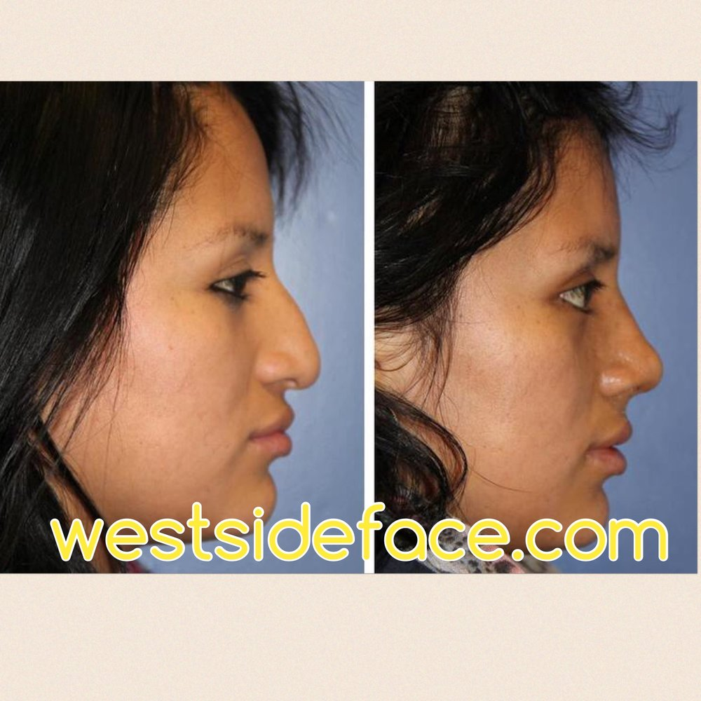 Ethnic female rhinoplasty with correction of severe tip droop and bridge hump.