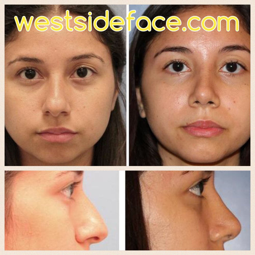 Female primary rhinoplasty with correction of hump and improved tip size and definition