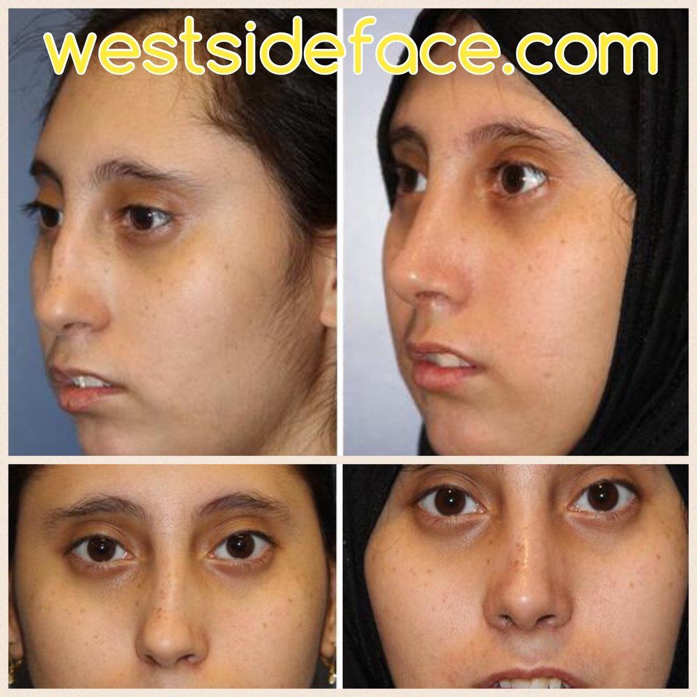 Complex female rhinoplasty with correction of crooked nose. Correction of poorly defined tip and smoothing of bridge.