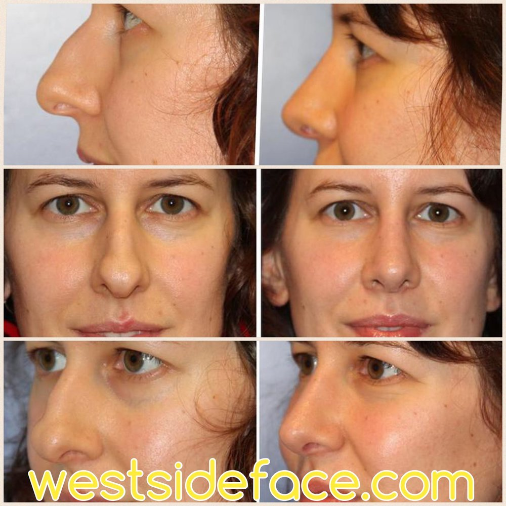 Advanced female rhinoplasty with refinement of tip and correction of droopy tip. Perfectly natural and balanced result.