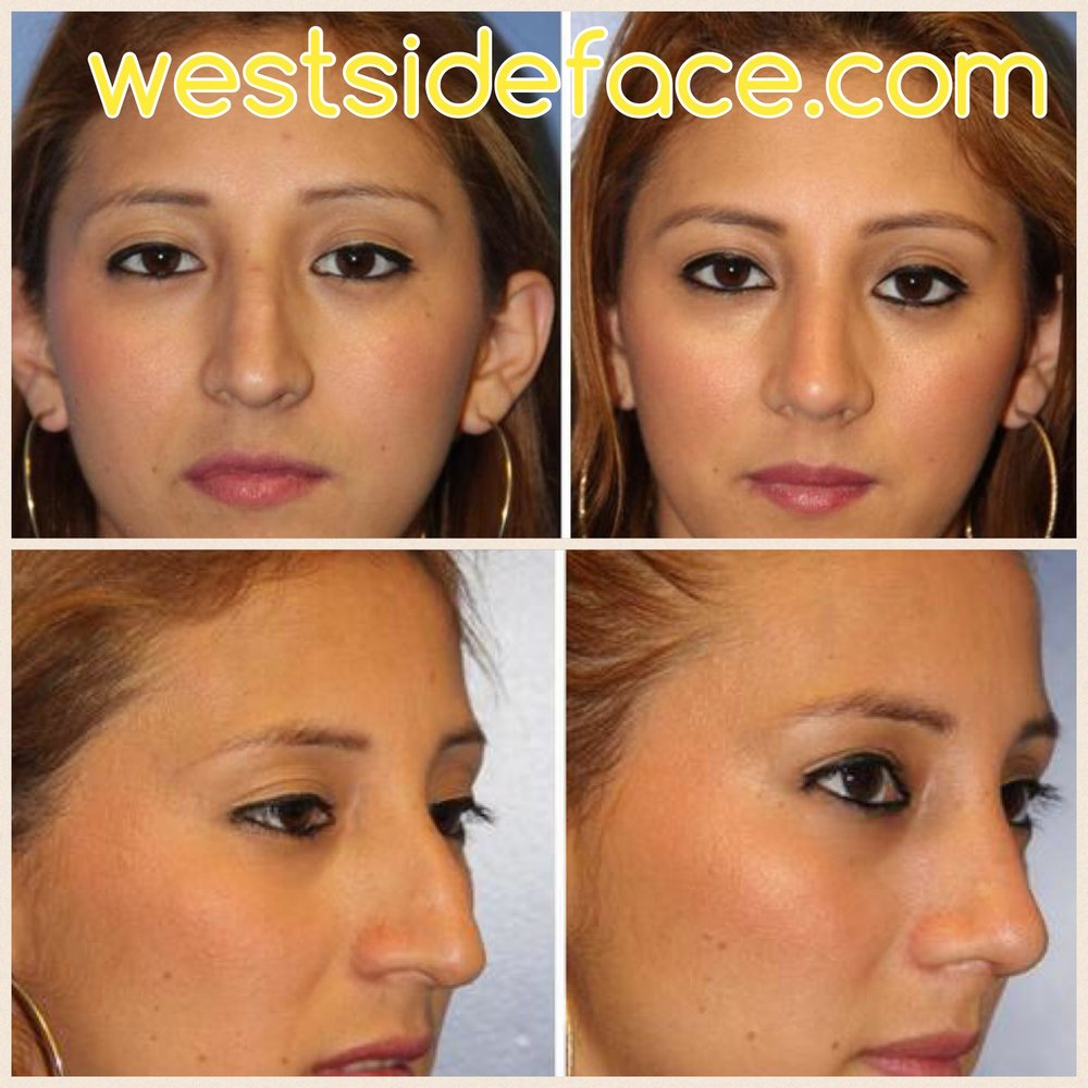 Advanced female rhinoplasty with correction of droopy tip and bridge hump. Improvement in breathing with advanced spreader grafts.