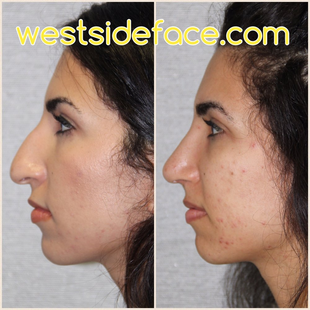 Middle eastern advanced rhinoplasty. Correction of severe tip droop and correction of hump. Improved tip definition for a more balanced and feminine result.