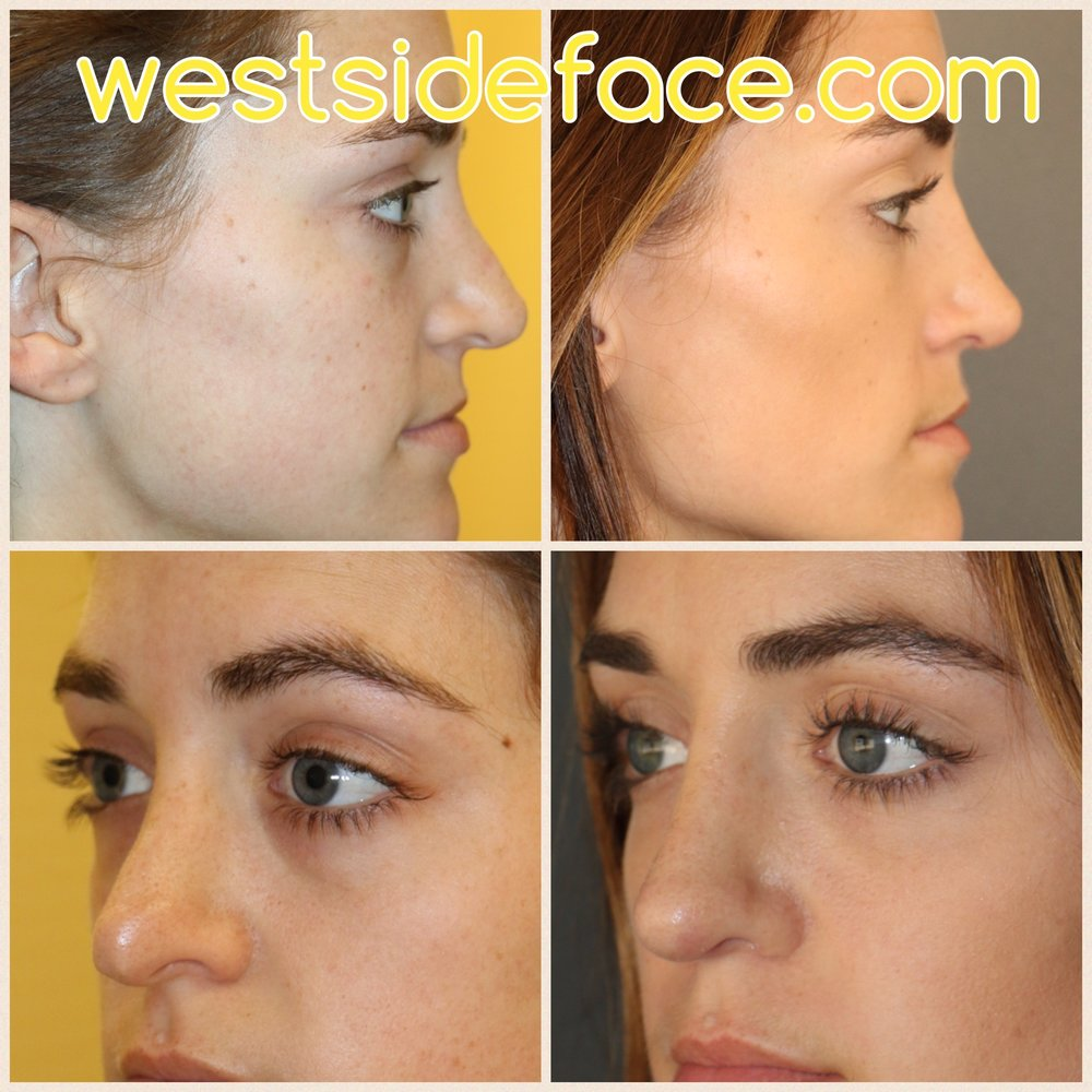 Complex revision rhinoplasty. Correction of droopy tip and bump on bridge. Correction of sharp irregularities on tip with contouring grafts.