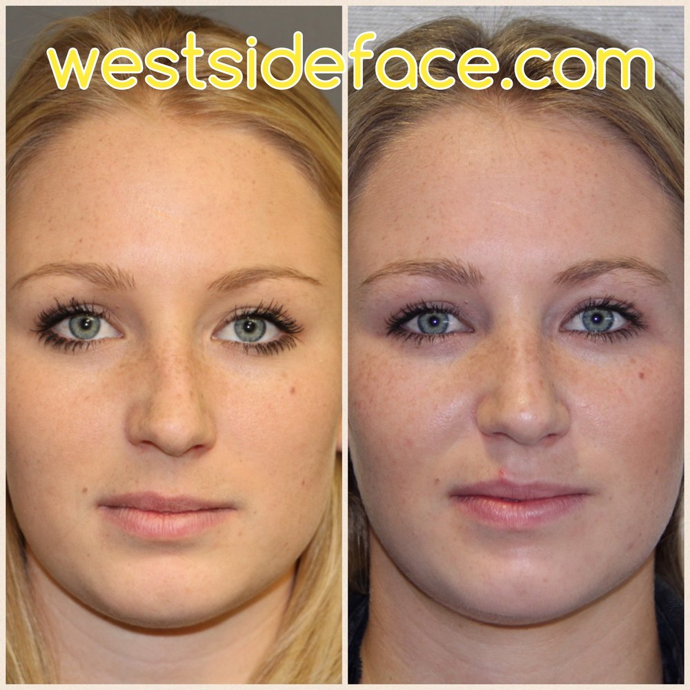 Correction of deviated septum and collapse of right side. More straight nose with resolution of breathing problem. Photos taken 2 weeks after scarless endonasal surgery.