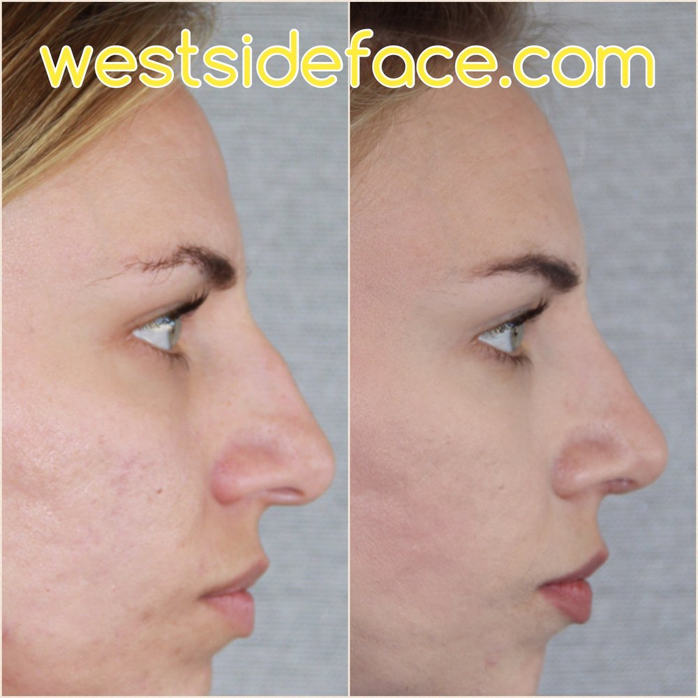 Female rhinoplasty with correction of droopy tip and bump on bridge. Improved tip definition and size.