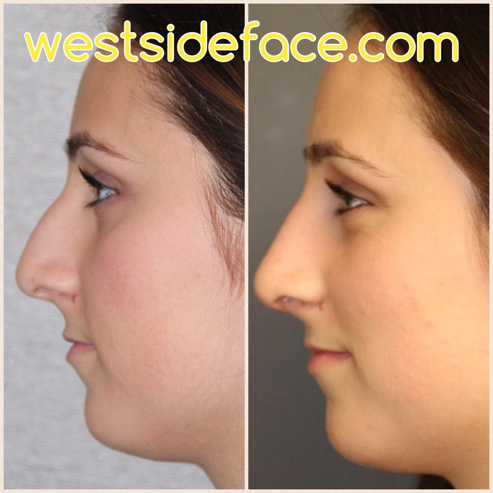 Correction of droopy tip and bridge hump. Improved tip definition for more feminine and natural appearance.