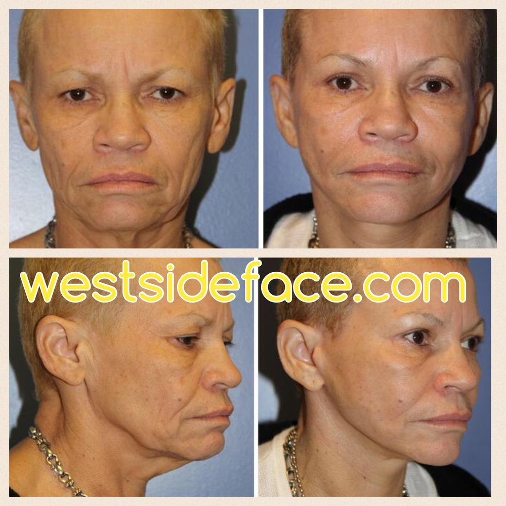 Awake facelift performed in office under local anesthetic. Results six weeks after procedure showing natural rejuvenation of cheeks, jawline, and neck.