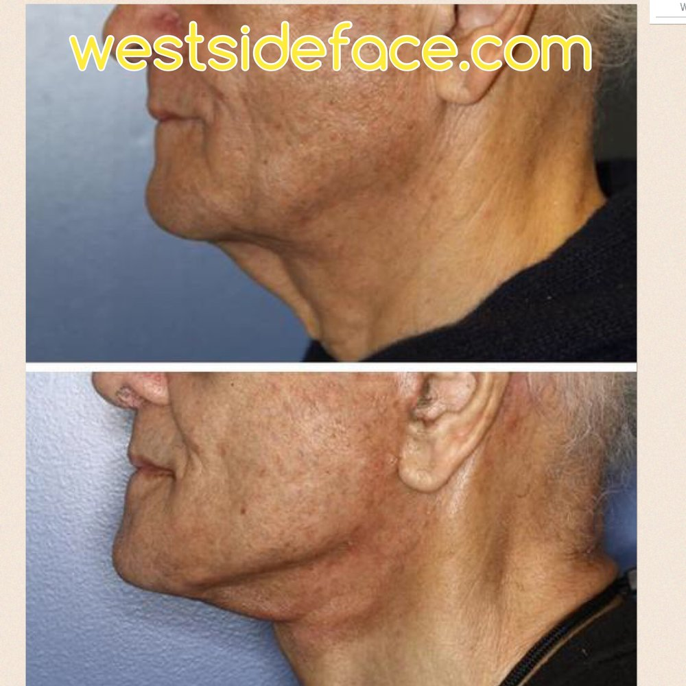 Two weeks after male necklift with natural, clean improvement in jawline definition.