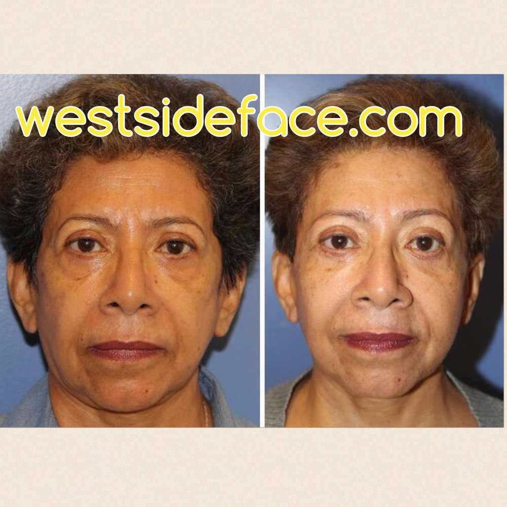 Upper and lower eyelid lift, endoscopic browlift