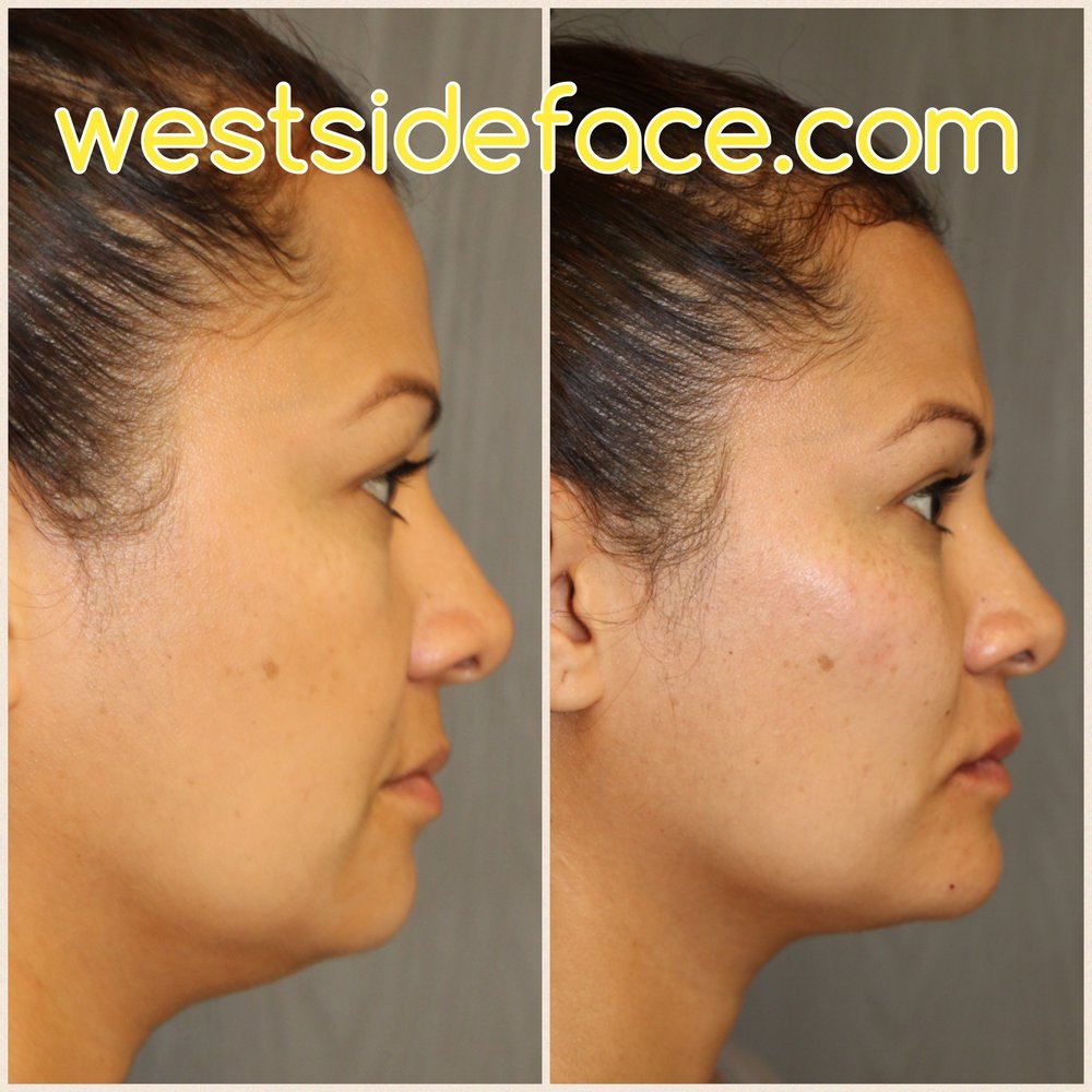 Expert fillers to cheeks, lips, and chin to give immediate results with refreshed look.