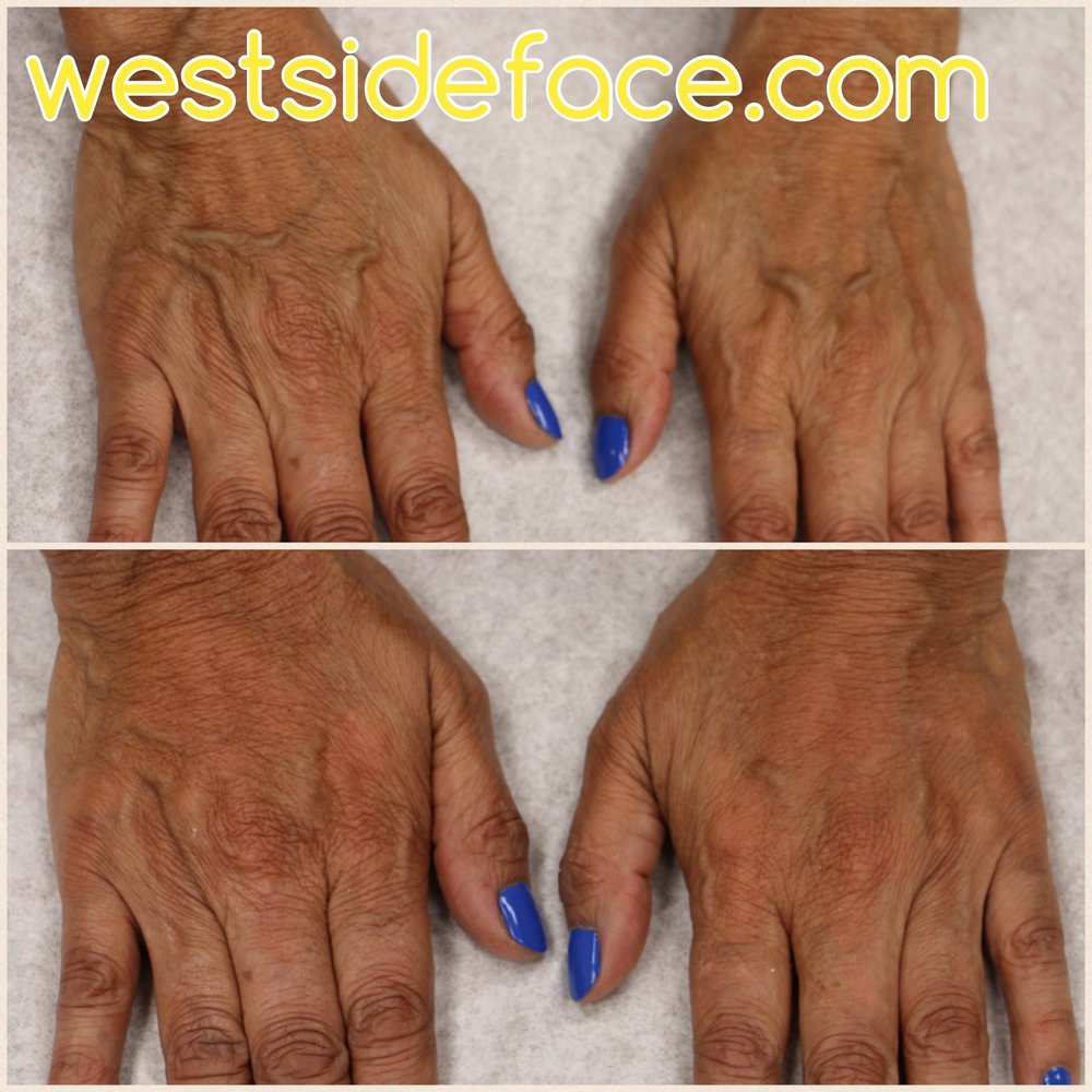 Filler treatments for aging hands. Immediate results appreciated. Minimal to no downtime.