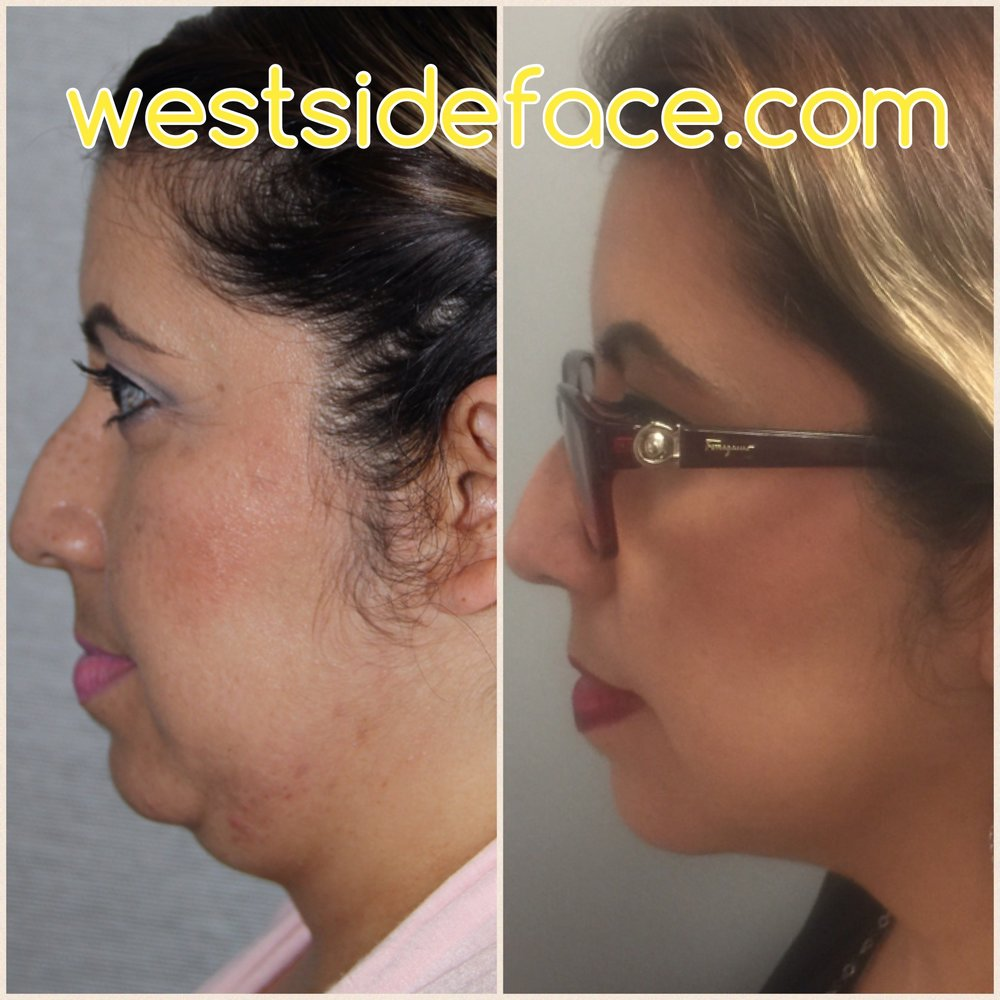 Six weeks after a single Kybella treatment for correction of neck fat and jawline improvement. No downtime. No surgery. No incisions