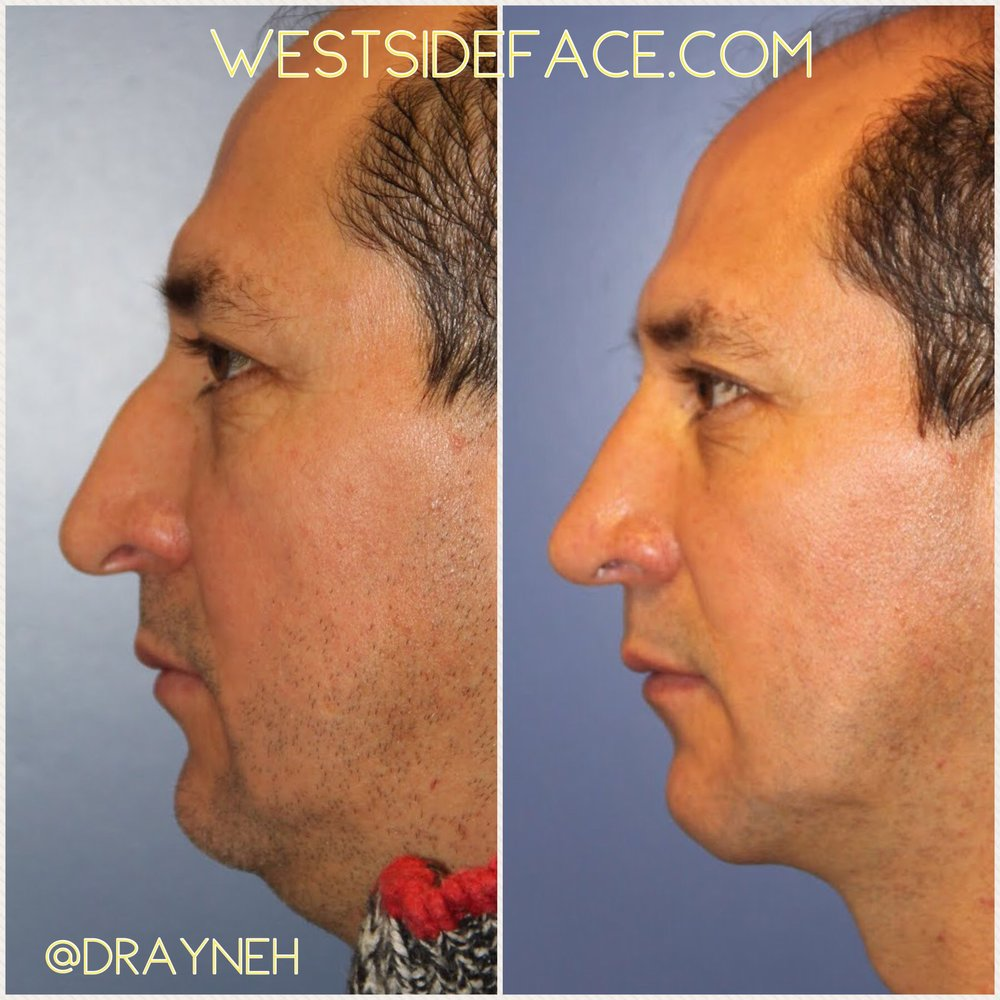 Droopy tip and bridge hump corrected. Liposuction beneath chin to give more youthful apperance.