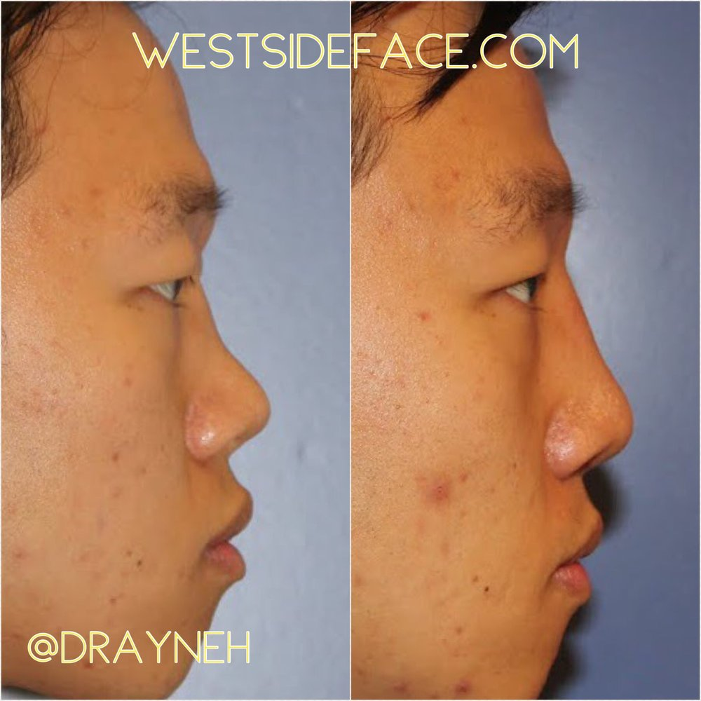 Ethnic Asian rhinoplasty with augmentation of bridge with cartilage grafting.
