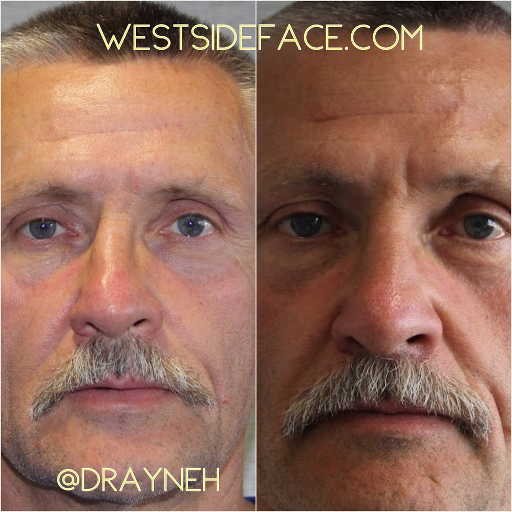 Correction of crooked nose with cartilage grafting and shifting nasal bones.