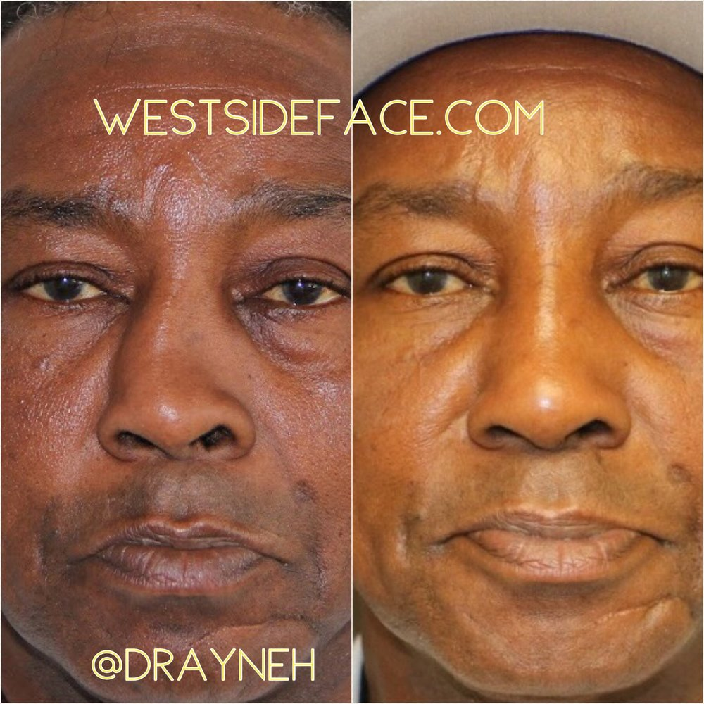 Correction of severely crooked nose with shifting bones without the need for cartilage grafting.