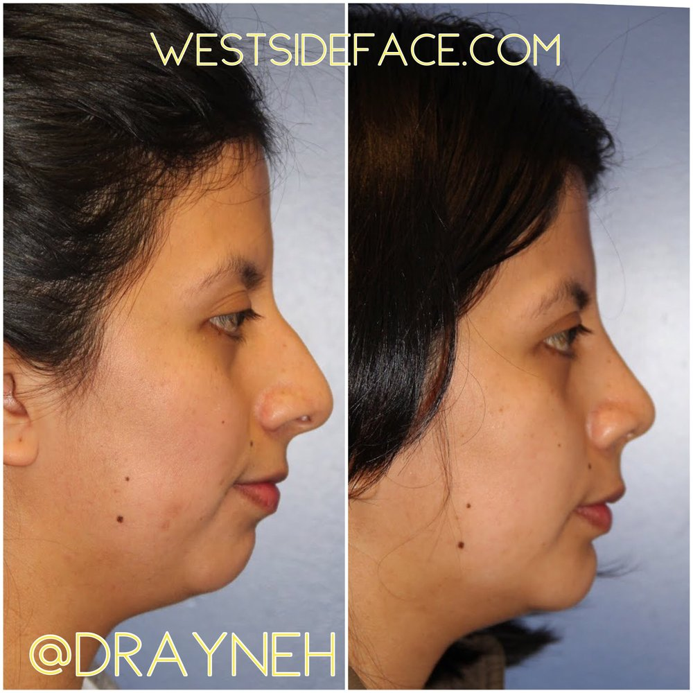 Size medium silastic extended anatomic chin implant and rhinoplasty