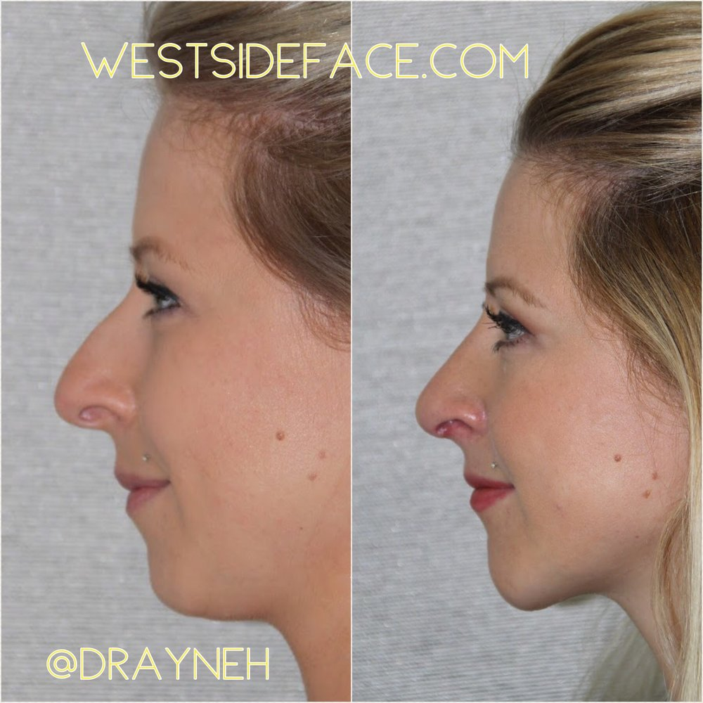 Size medium low profile extended anatomic silastic chin implant with rhinoplasty