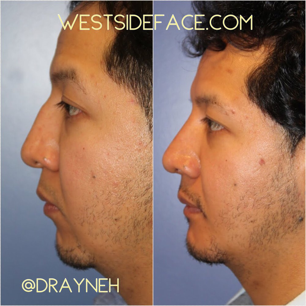 Size medium extended anatomic implant placed from inside the mouth, without outside scars. Rhinoplasty to further enhance facial balance