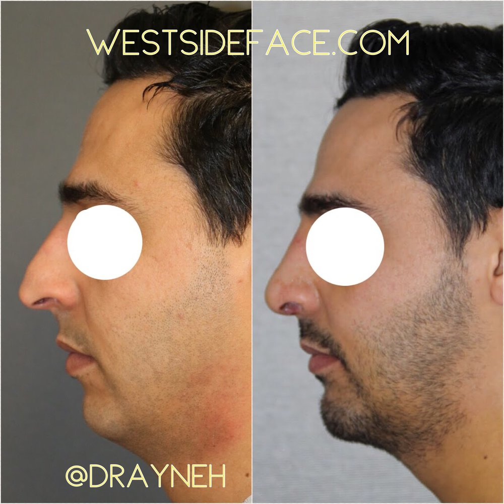 Size large extended anatomic silastic chin implant with rhinoplasty