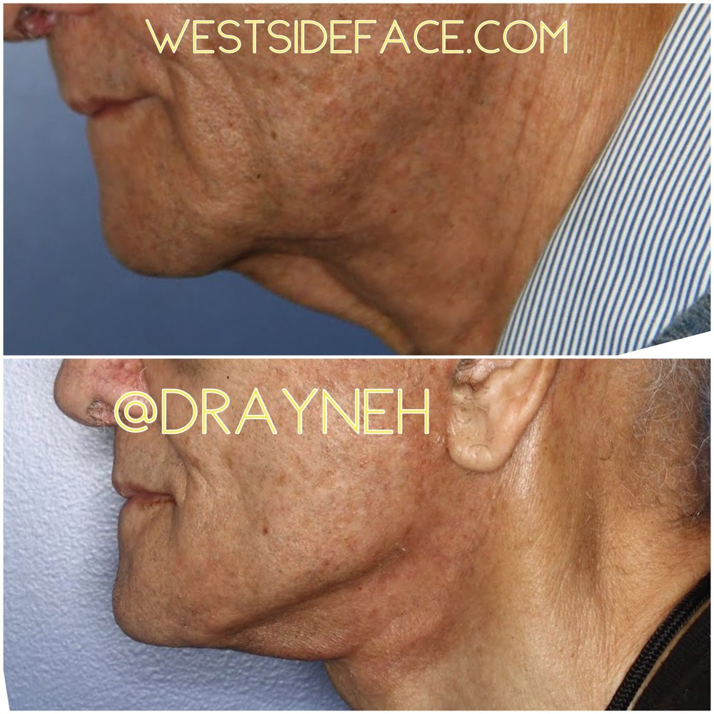 Male necklift with significant improvement in jawline.