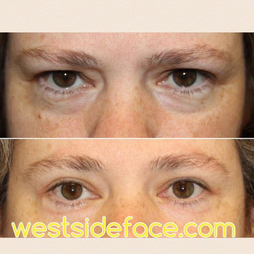 Lower blepharoplasty with correction of under eye bags. Upper blepharoplasty with removal of excess upper eyelid skin. Endoscopic brow lift to give a more refreshed look.