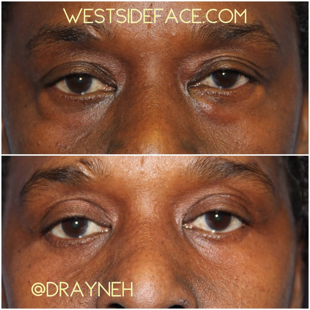 Upper blepharoplasty to address excess skin. Lower blepharoplasty to correct lower eyelid bags.