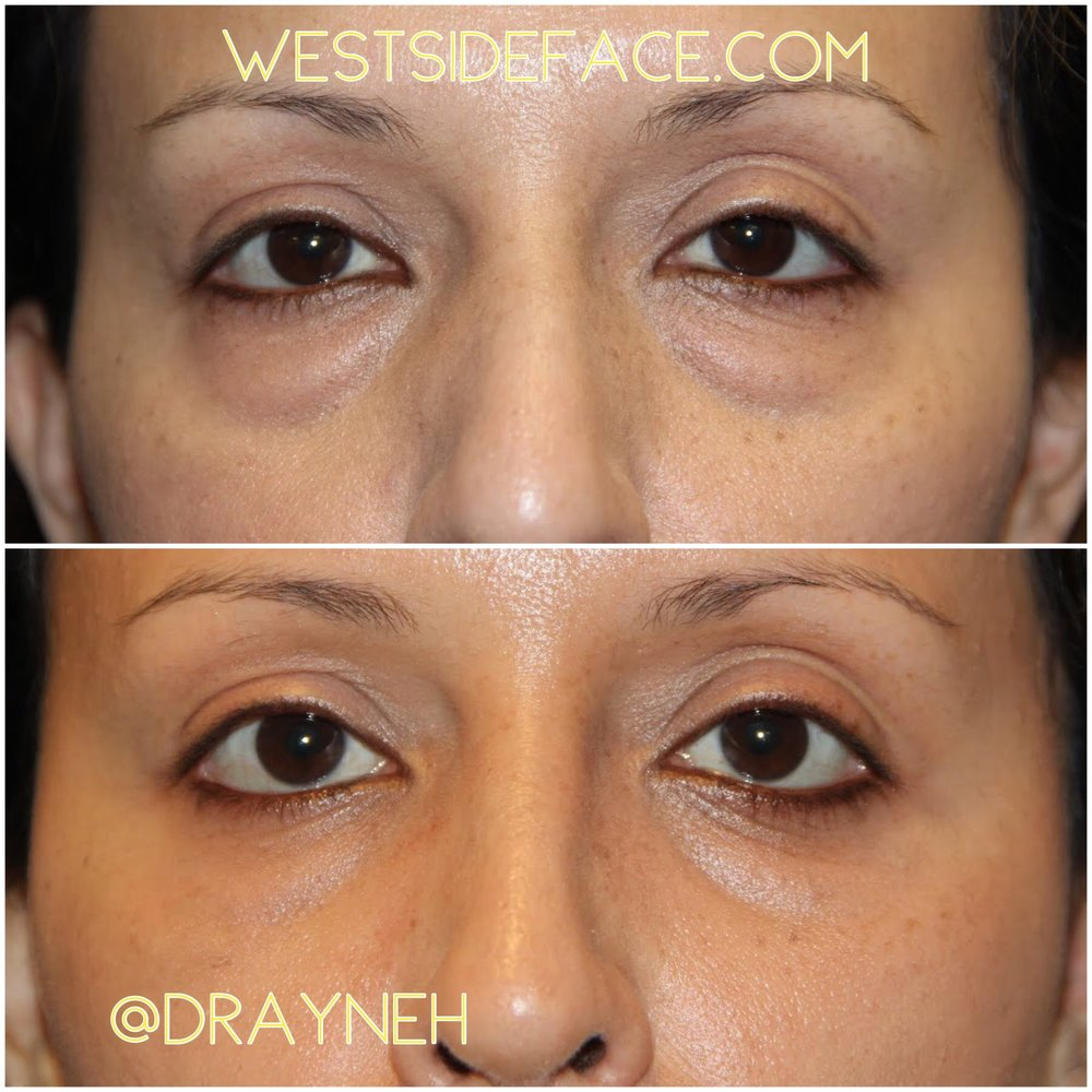 Scarless lower eyelid blepharoplasty with incisions from inside the eyelid to address eye bags.