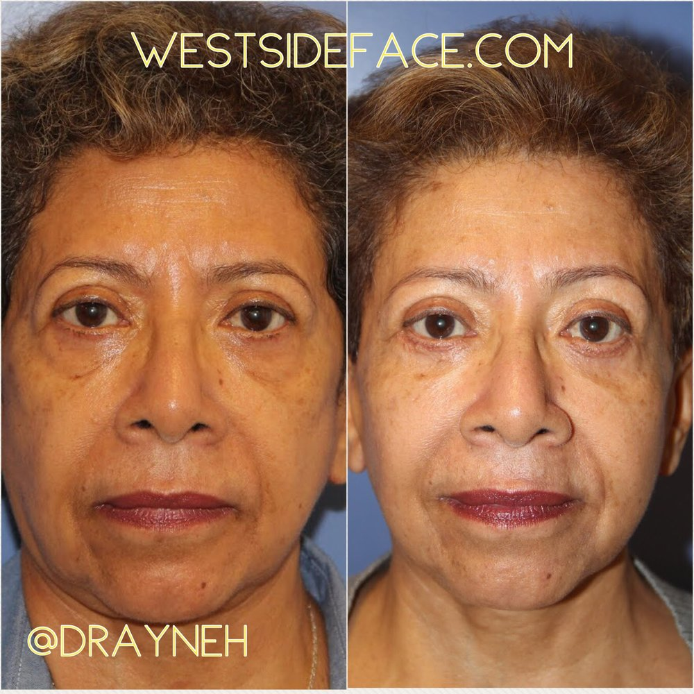 Lower eyelid blepharoplasty with tightening of lower eyelid skin. Endosccopic browlift to give a more refreshed look.