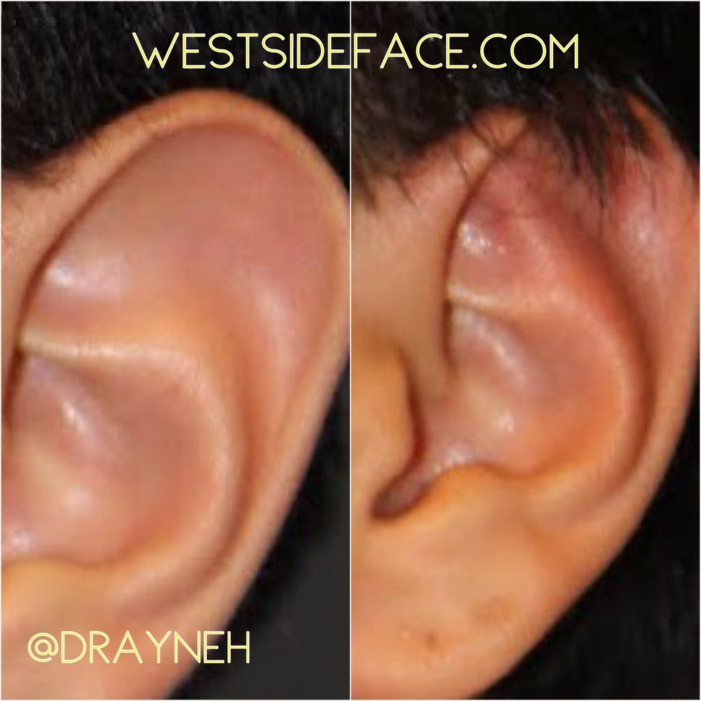 Creation of fold to restore natural ear contour.