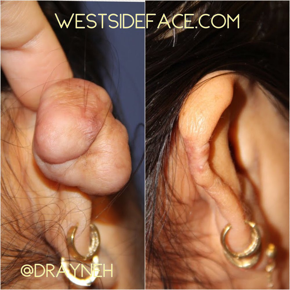 Removal of ear keloid with reconstruction