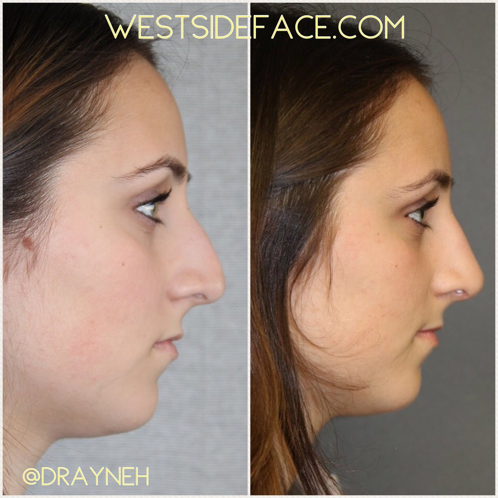 17 days after rhinoplasty to achieve correction of droopy tip and bridge hump.