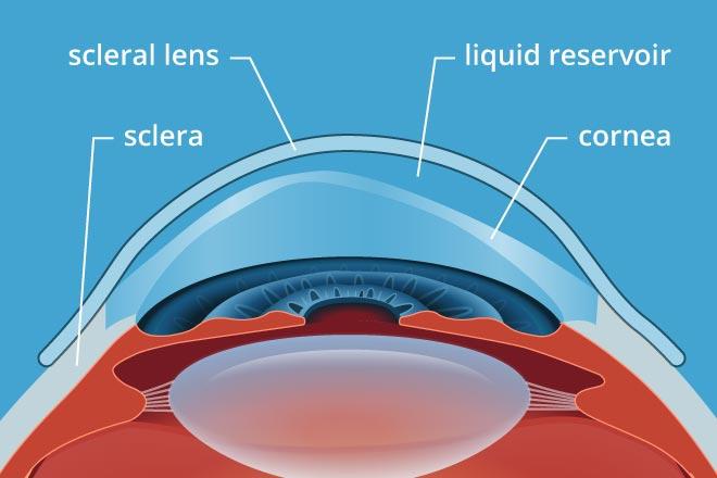 scleral lenses.jpg