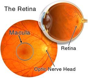 img-retina.jpg