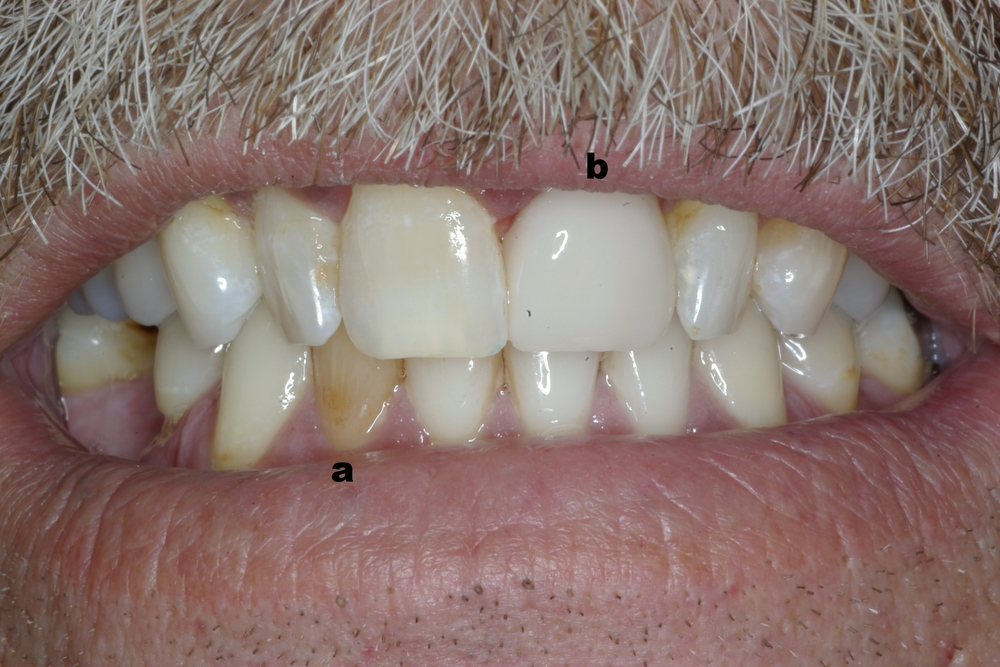 Same Day Crown with CEREC