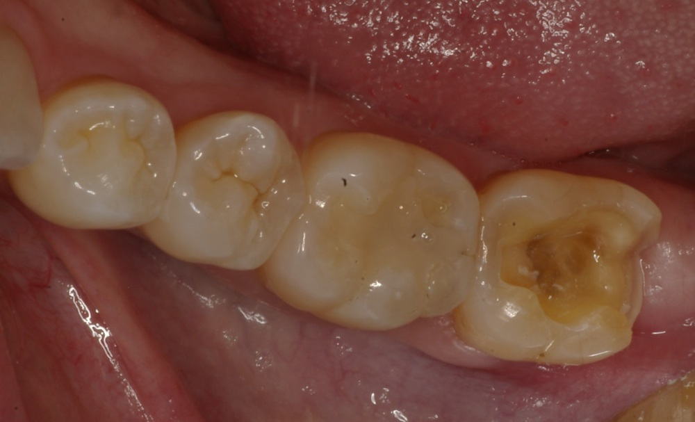 Same Day CEREC Inlay