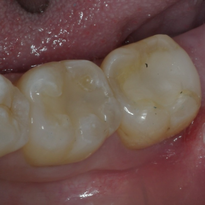 After photo. Tooth is restored with an onlay restoration fabricated with our CEREC one-visit-dentistry technology.