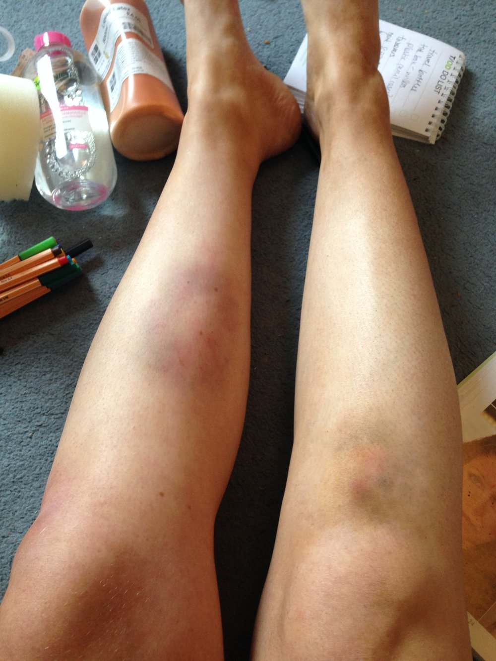 bruises with ben nye bruise wheel