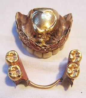 Antique-Enamel-and-Gold-False-Teeth-2.jpg