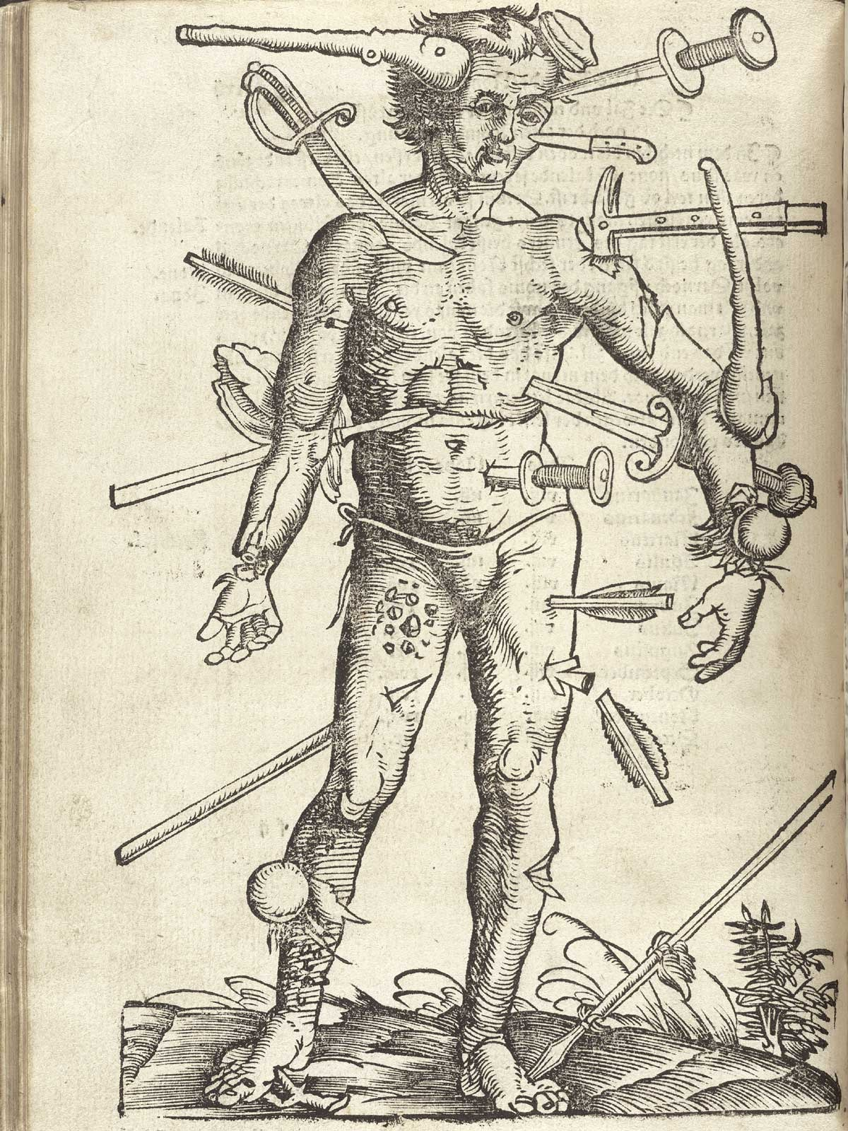scarlettown :      The Wounded Man , from Hans von Gersdorff's Fieldbook of Surgery , 1517. Illustration by Hans Wechtlin