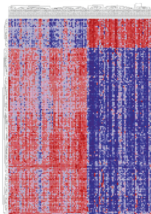 libertasacademica :     Figure 3 from ' Integrated Analysis Reveals hsa-miR-142 as a Representative of a Lymphocyte-Specific Gene Expression and Methylation Signature ' Published in  Cancer Informatics