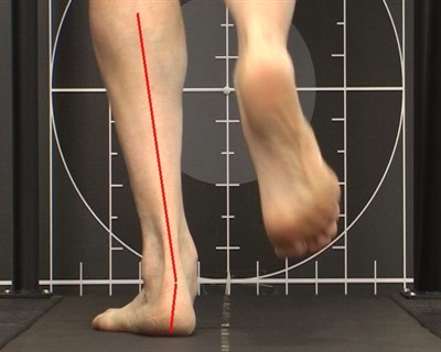 video gait examination