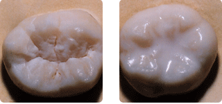(LEFT) Pictured is an untreated tooth, with deep grooves and pits.  (RIGHT) The tooth is treated with a protective sealant.