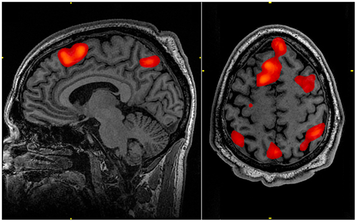 fMRI of the human brain
