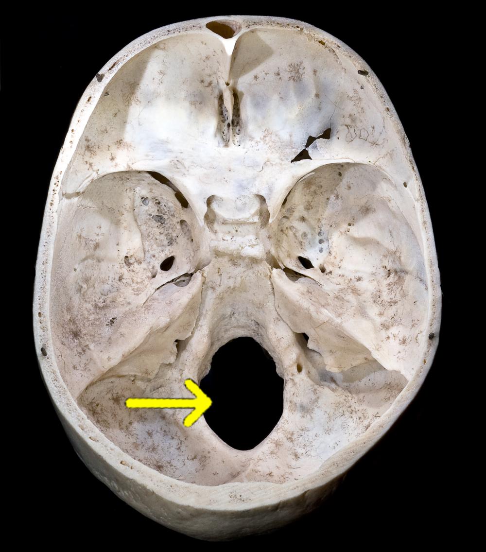Foramen magnum. Image courtesy of Didier Descouens.