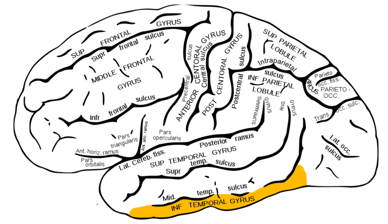 Inferior temporal cortex (in yellow).