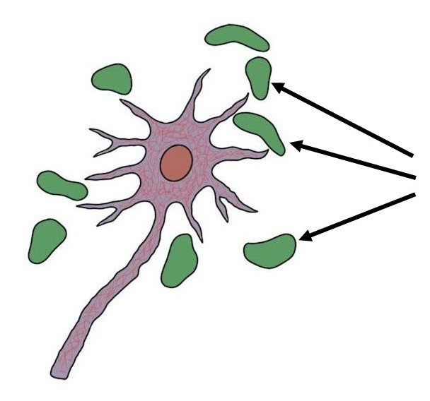 amyloid plaques (in green)