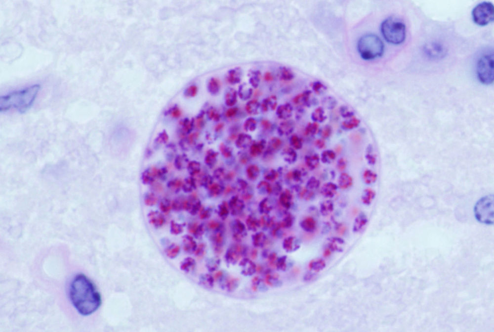 T. gondii cyst in a mouse brain.