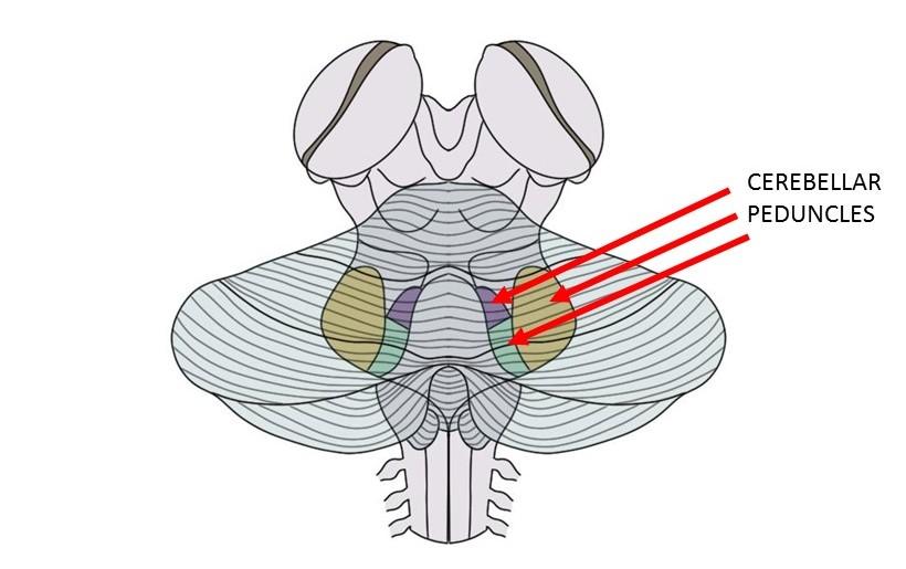 cerebellar peduncles.